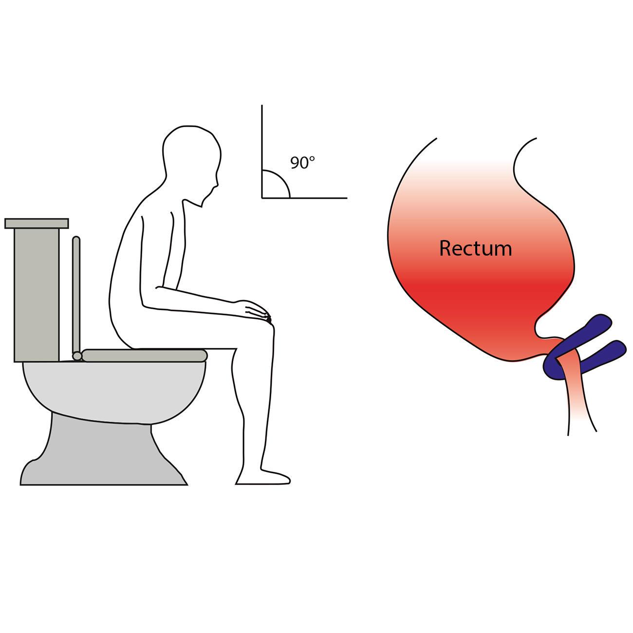Toilettenhocker 3 Jahre Garantie Pro Idee